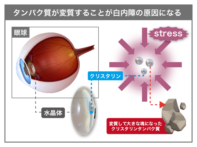 cataract_stress