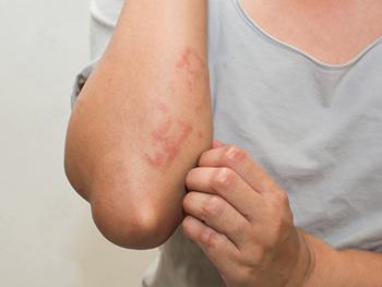 アトピーの肌に保湿剤を使用するとかゆみが強くなってしまう3つの理由